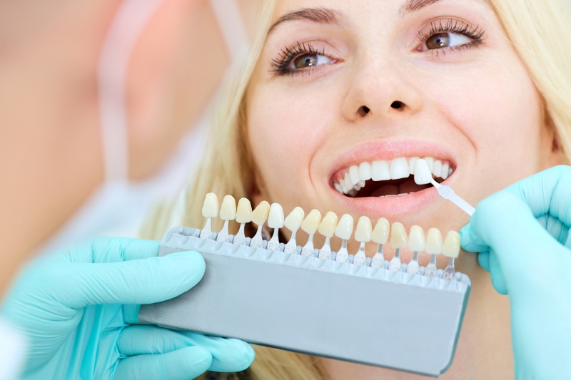 This is the image for the news article titled What Are Dental Crowns?